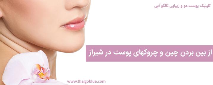 از بین بردن لک و روشن سازی پوست در شیراز