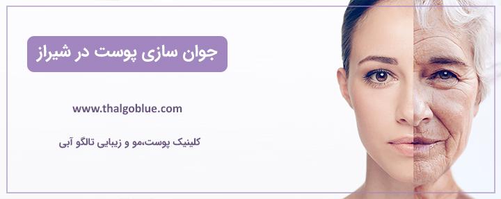 جوان سازی پوست در شیراز